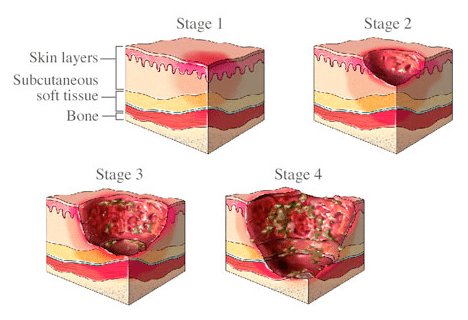 bed pressure sore stages