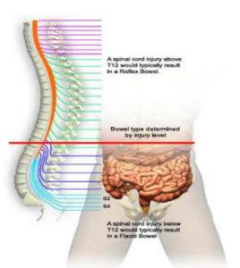 Neurogenic bowel management spinal injury guidelines