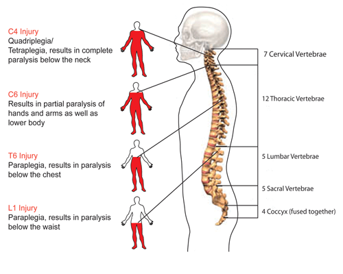 Spinal cord injury types and causes