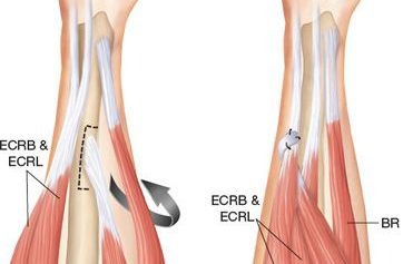 tendon transfer surgery after spinal cords injury author's experience