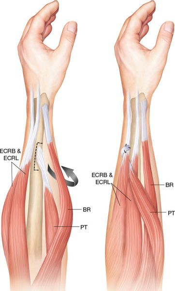 tendon transfer