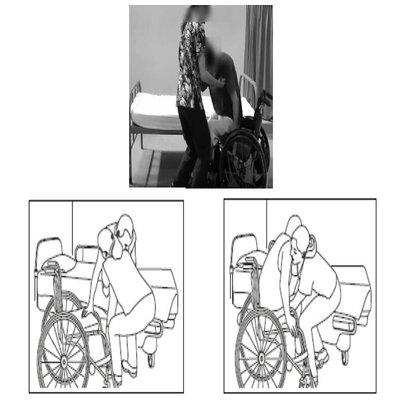 Bed to wheelchair transfer techniques : Quadriplegic transfer guide